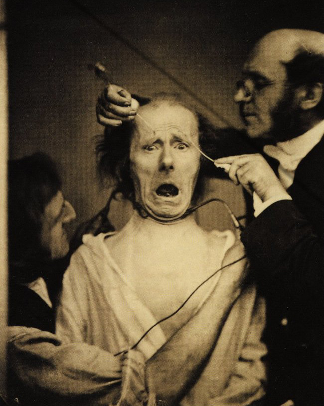 1862. Neurologist Duchenne de Boulogne electrocuting a man's face in order to study facial muscles. France. [1862]bb