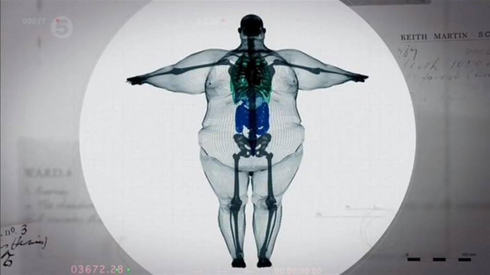 computer-animation-of-a-guy-who-weighs-almost- 1,000-pounds-1